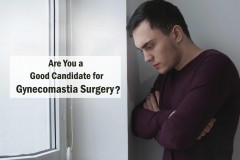 Plastic Surgeon India - Who is a good Candidate for Gynecomastia Surgery?